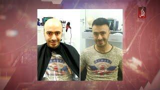 تركيب الشعر ، محمد شخيص يحدثنا عن احدث تقنياته و صيحاته   مساء الامارات 16-04-2018