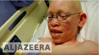 Spell of the Albino - REWIND