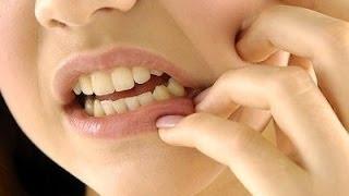 كيفية السيطرة على ألم الأسنان ليلاً | ما هو علاج ألم الأسنان ؟ | كيف تسيطر على ألم الأسنان؟