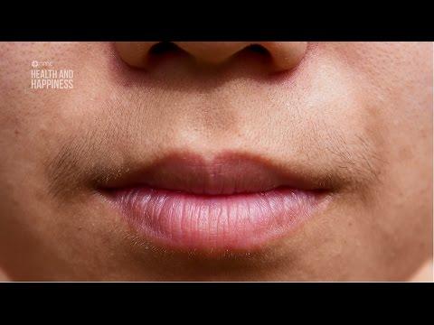 Polycystic Ovarian Syndrome [Malayalam] - Dr. Nayana Kumari - Asianet ME TV