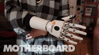 Living With Future Prosthetics: Humans+