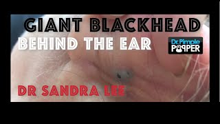Giant Blackhead, Dilated Pore of Winer, behind the ear extracted