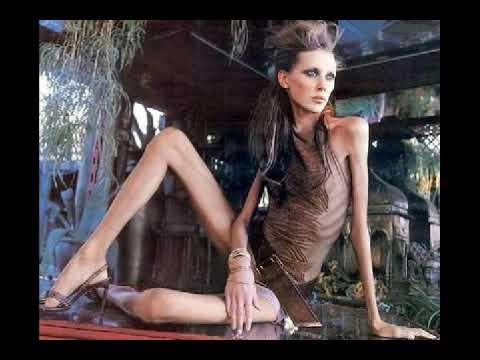 Anorexia en Obregon