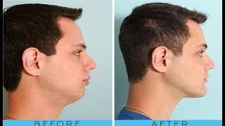 how to get a good jawline and cheekbones