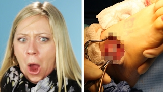 A Woman Watches Her Own Surgery