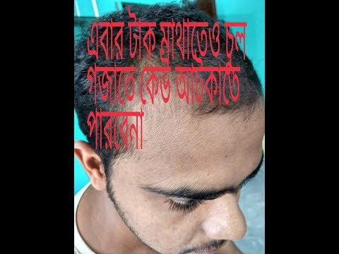 Xxx Mp4 Regrowth Hair Treatment Part 1 In Bengali এখন খুব সহজেই নতুন চুল গজান। 3gp Sex