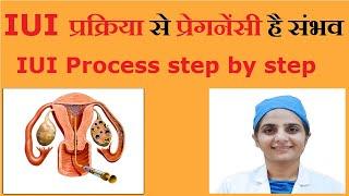 IUI Infertility treatment explained in Hindi