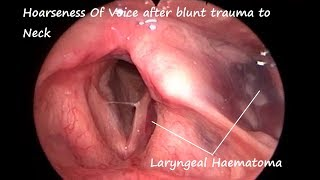 Laryngology : Hoarseness of Voice After Blunt Trauma To Neck