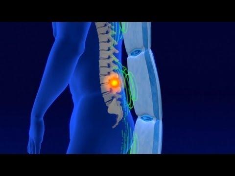 Magnetoterapia pulsante Biomag información general para los interesados