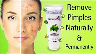 PIMPLE AND PIGMENTATION CREAM-www.myrecharge.co.in