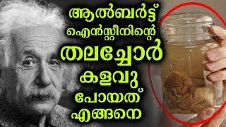 ബുദ്ധി രാക്ഷസനായ ഐൻസ്റ്റീനിന്റെ തലച്ചോറിന്റെ പ്രത്യേകതകൾ     The Secrets of Einstein