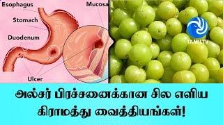அல்சர் பிரச்சனைக்கான சில எளிய கிராமத்து வைத்தியங்கள்! - Tamil TV