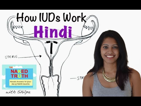 How an IUD Works - Hindi