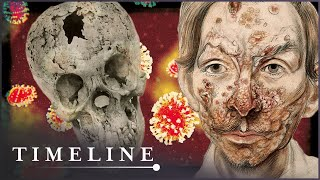 The Syphilis Enigma (Medieval Disease Documentary) | Timeline