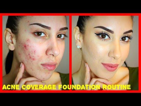 Acne Coverage Foundation Routine PRE ACCUTANE Drugstore Products