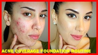 Acne Coverage Foundation Routine (PRE-ACCUTANE) Drugstore Products!!!