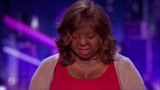 Kechi: Miracle Plane Crash Survivor POURS HER HEART out on Stage | America's Got Talent 2017
