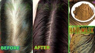 AYURVEDIC HAIR MASK TO STOP HAIR FALL~BOOST HAIR GROWTH || PRIYA MALIK