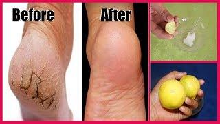 How to Repair Cracked Heels - Ayurved Ke Gharelu Nuskhe