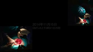 剖腹生產全記錄|照片MV|甜蜜蜜