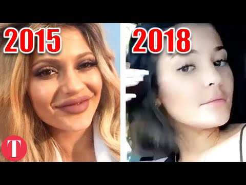 10 Celebrities Who REVERSED Their Plastic Surgery Enhancements