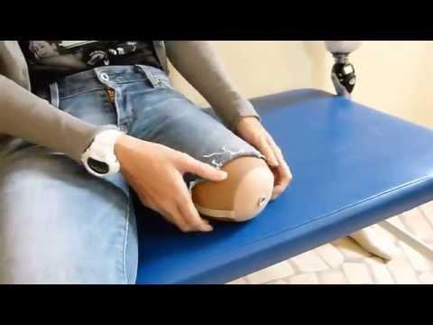 Zakładanie silikonu linera w systemie pin zamek założenie protezy nogi pierwsza próba pacjenta .