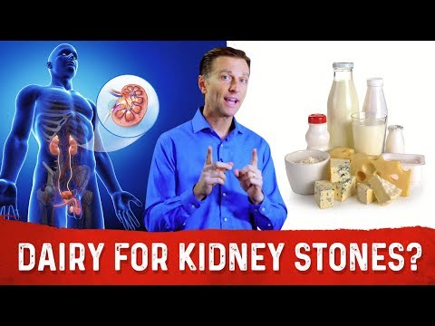 Xxx Mp4 Should You Take Eat Dairy Calcium With Kidney Stones 3gp Sex