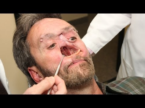 The Man With A Hole In His Face Body Bizarre Episode 3