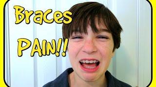 Painful Braces!! Braces Update
