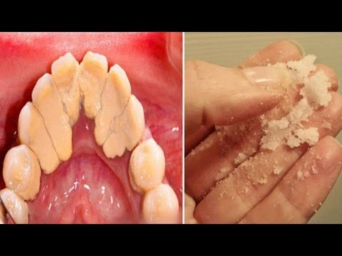 How to Get Rid of Plaque  - Home Remedies for Plaque and Tartar