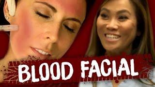 Blood Facial w/ DR PIMPLE POPPER!! (Beauty Trippin)