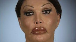 Transgender Plastic Surgery Addict - Monique Allen