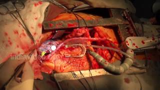 Live Open Heart Surgery in Hospital - Heart Operation Videos