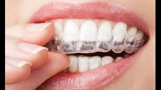 وصفة سحرية لتبييض اسنانك خلال ساعة بورق الألومنيوم