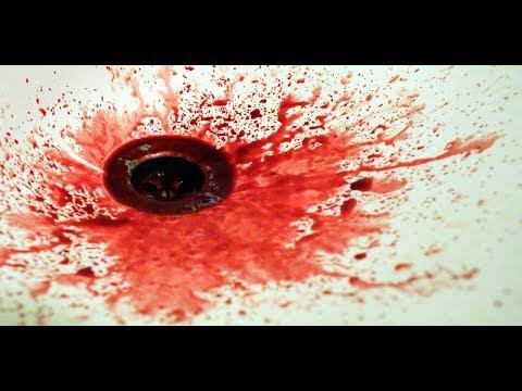 Xxx Mp4 सपने में खून देखने का मतलब ।sapne Me Khoon Dekhana Blood Dream Meaning 3gp Sex