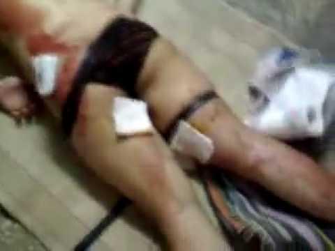 Graphic/ alleged raped prisoners in Kahrizak Prison - Iran Tehran