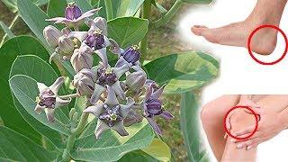 குதிகால் வலி, மூட்டு வலி குணமாக்க அத்புதமான மருத்துவம் | Joint pain home remedies