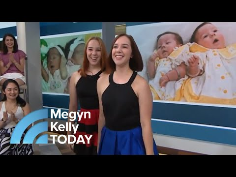 Conjoined Twin Sisters Tell Their Story 'Being By Her … It's So Calming Megyn Kelly TODAY