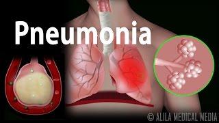 Pneumonia, Animation