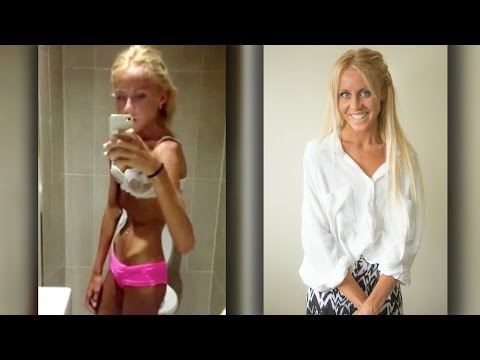 Teen Overcomes Anorexia After Near Death Experience