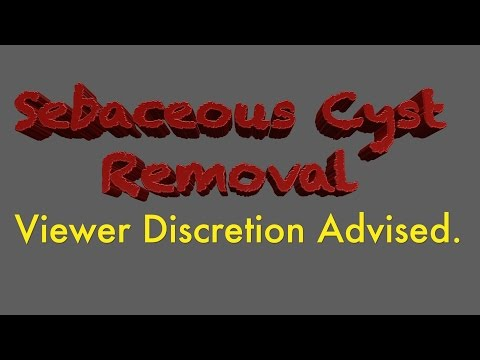 Sebaceous Cyst Medically REMOVED from Under Breast