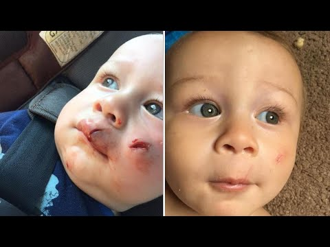 Xxx Mp4 Mom Watches 1 Year Old Son Accidentally Get Hit In Face By Flying Drone 3gp Sex
