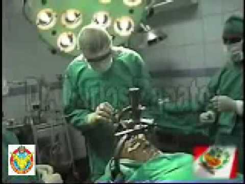 Tratamiento quirúrgico para el tratamiento del Mal de Parkinson en Lima