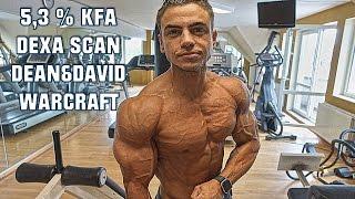 DEXA SCAN 5,3% REAL BODYFAT!  - DEAN & DAVID - WARCRAFT (VLOG #39)