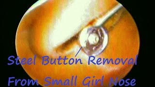 Steel Button Removal From Small Girl Nose : FB Nose Removal Endoscopic