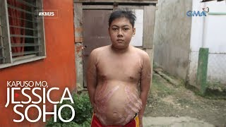 Kapuso Mo, Jessica Soho: Binata sa Cebu, may lumolobong stretchmarks?