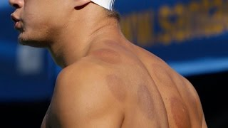 "Behind the ancient ""cupping"" treatment"