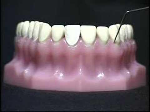 Xxx Mp4 Laser Dental Cleaning 3gp Sex