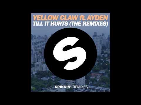 Yellow Claw ft. Ayden - Till It Hurts (Mr. Belt & Wezol Remix) Mp3
