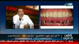الناس الحلوة | اسباب فقدان الاسنان وطرق تجميلها  مع  د. شادى على حسين